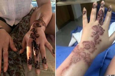 Henna Tattoo Cause Aussie Woman to Almost Lose Her Hand